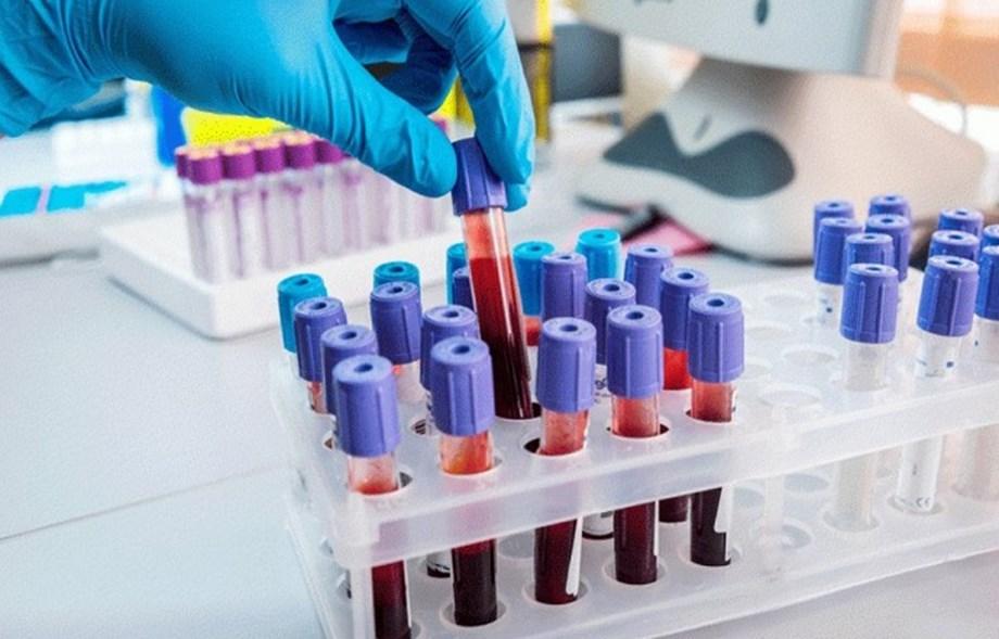 Australian Researchers develop drug to halt cancer in mice