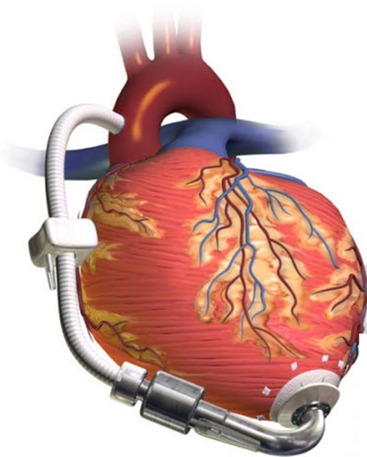 700 patients for the new heart in last 10 years