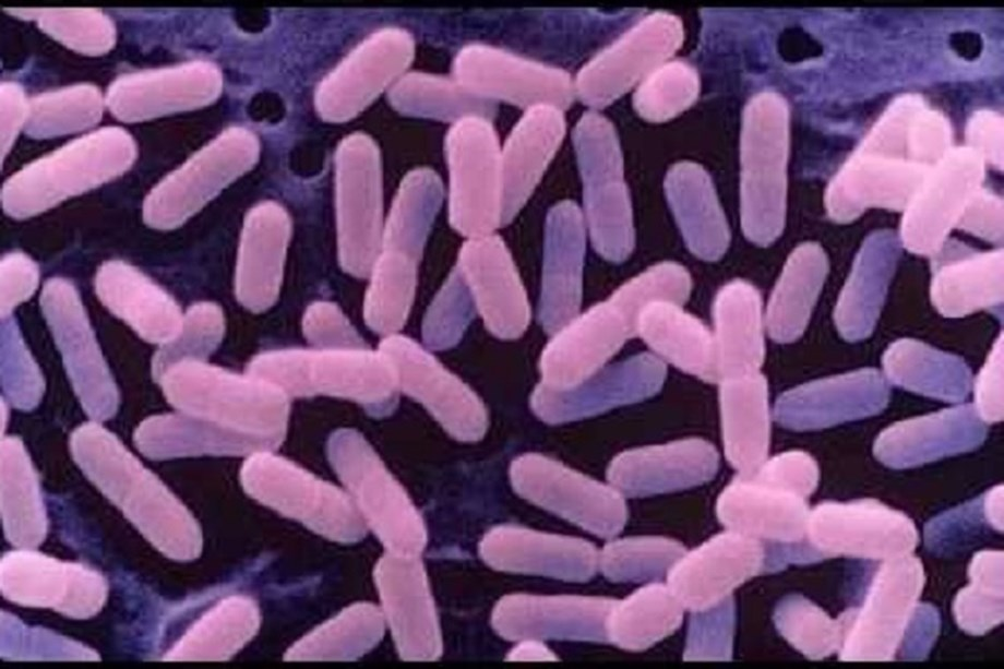 Listeria makes a comeback in Namibia, kills 180 in South Africa