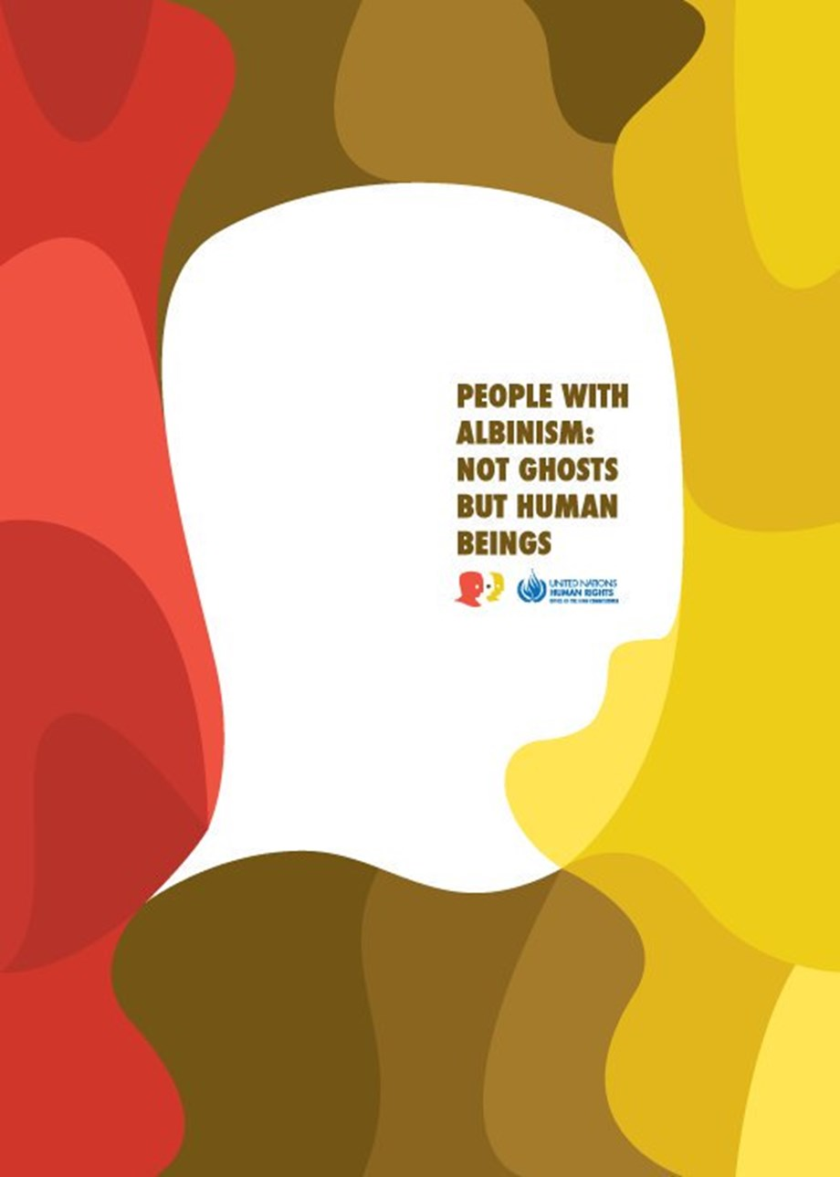UN celebrates international day to raise awareness on albinism
