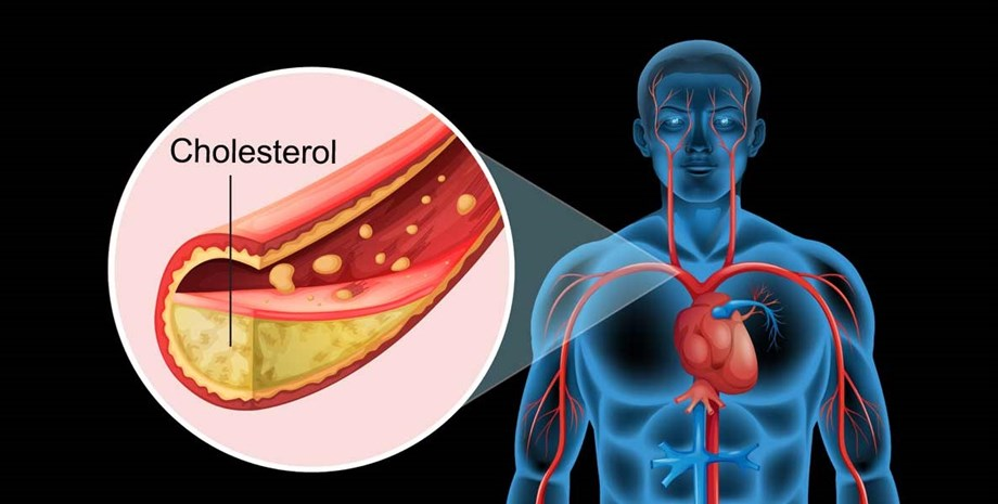 Elevated Cholesterol mostly goes untreated