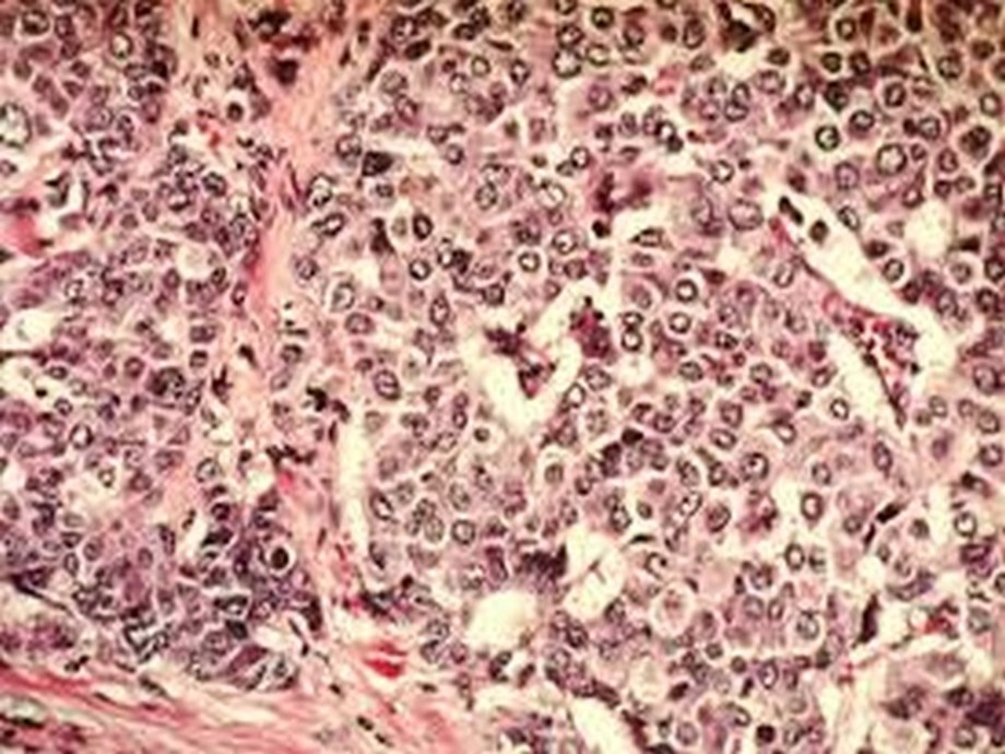 Scientists develop a new AI breast cancer diagnostic tool