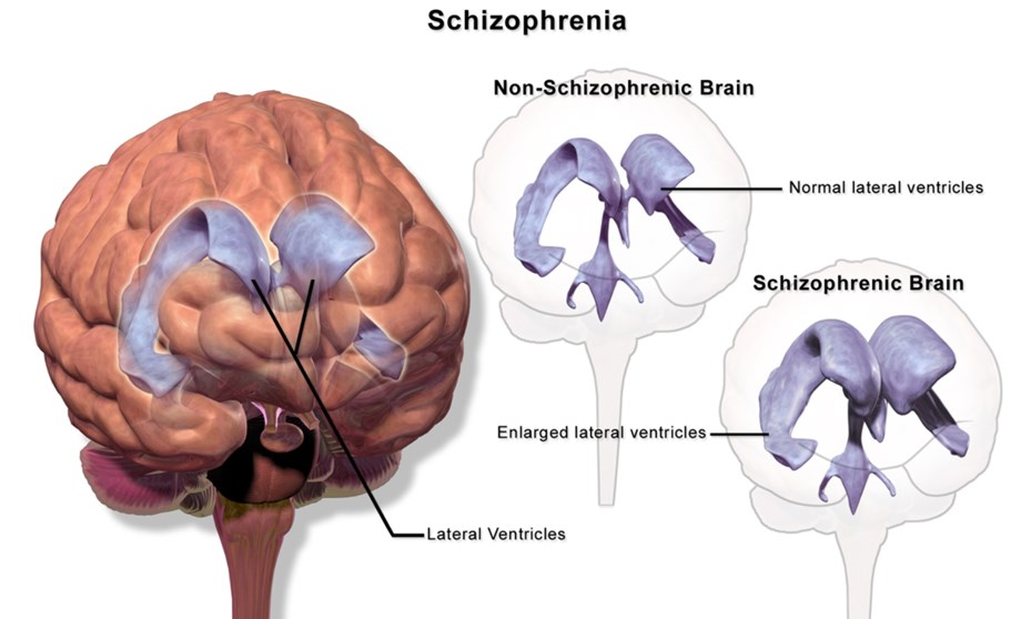 New study reveals brains of schizophrenia-related disordered humans aren't all similar