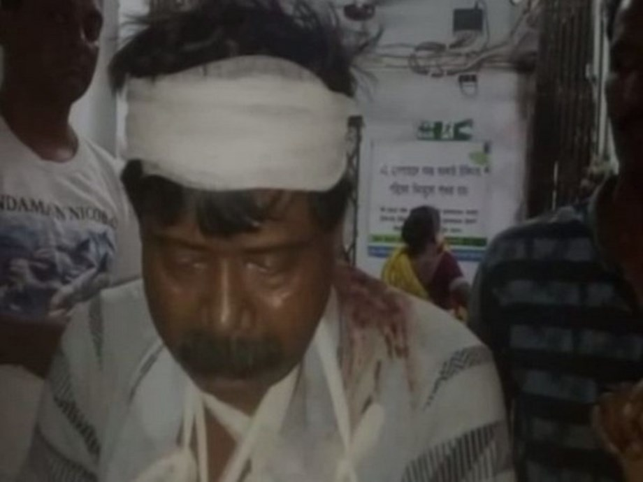 Two BJP workers injured in clashes with TMC in Burdwan