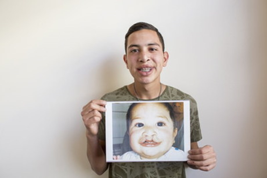 FDI World Dental Federation and Smile Train Launch Project to Improve Oral Health of Children With Clefts: The Most Common Birth Difference of the Face and Mouth