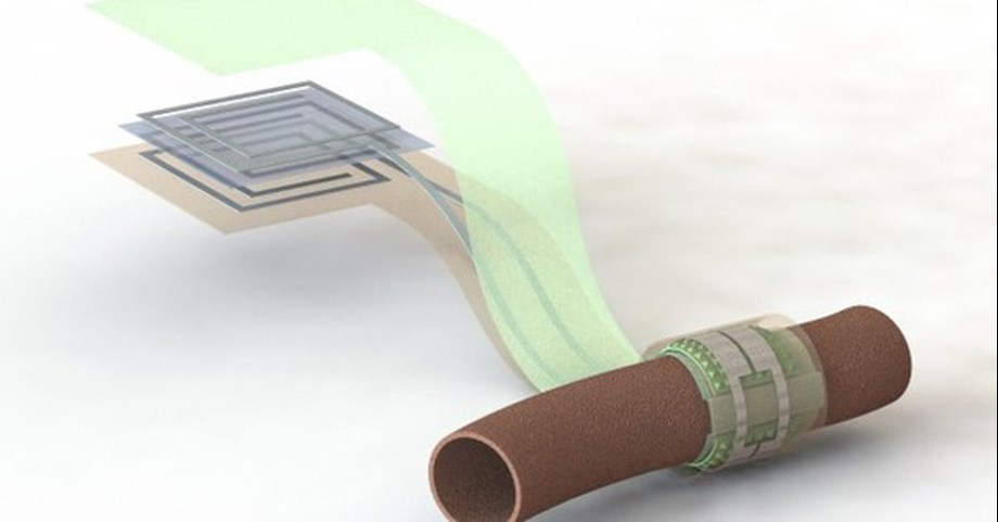 Biodegradable sensor can monitor blood flow in arteries