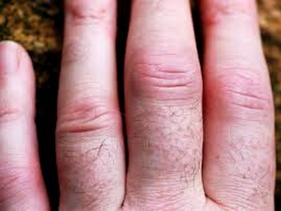 Can rheumatoid arthritis be delayed or prevented?