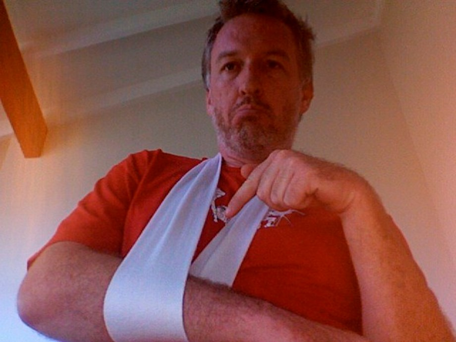 Shoulder fracture can be cured from conservative treatment with a sling: Study