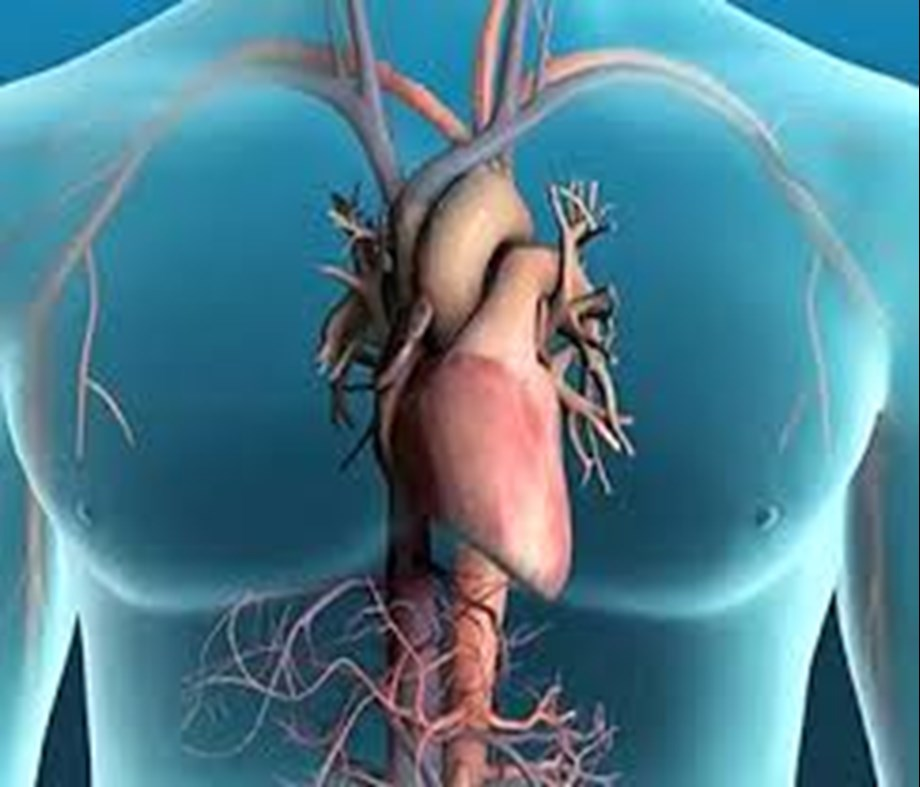Indian-American put USD 60 million in cardiac devices to replace stent