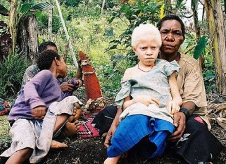 Spotlight gives hope to Africa's hunted albinos