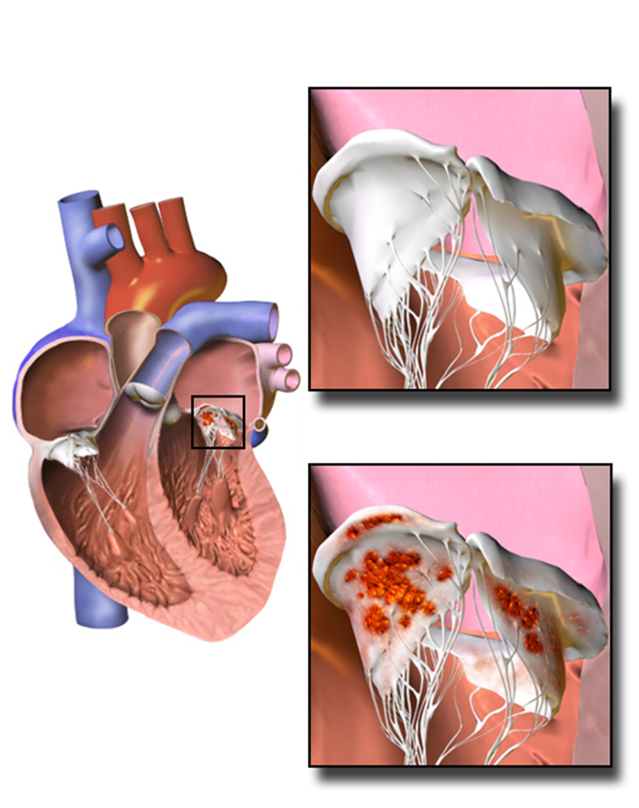 Medtronic and Edwards heart systems better than open heart surgery, risk potential minimum