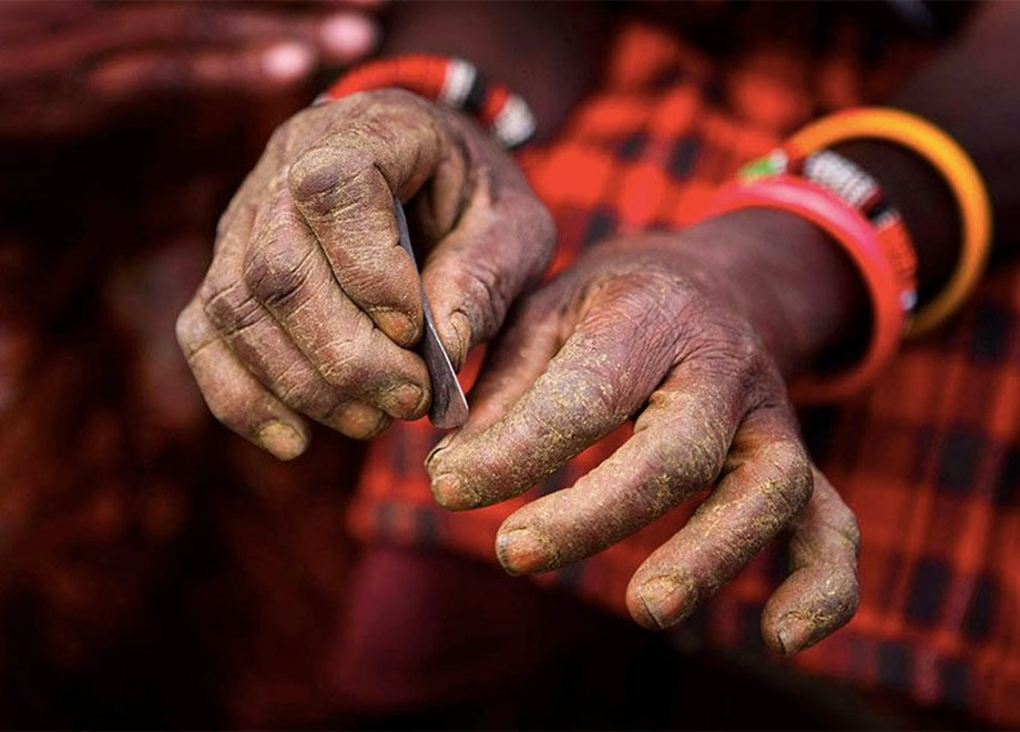 10-year-old dies in Sierra Leone after genital mutilation, uproar to ban practice