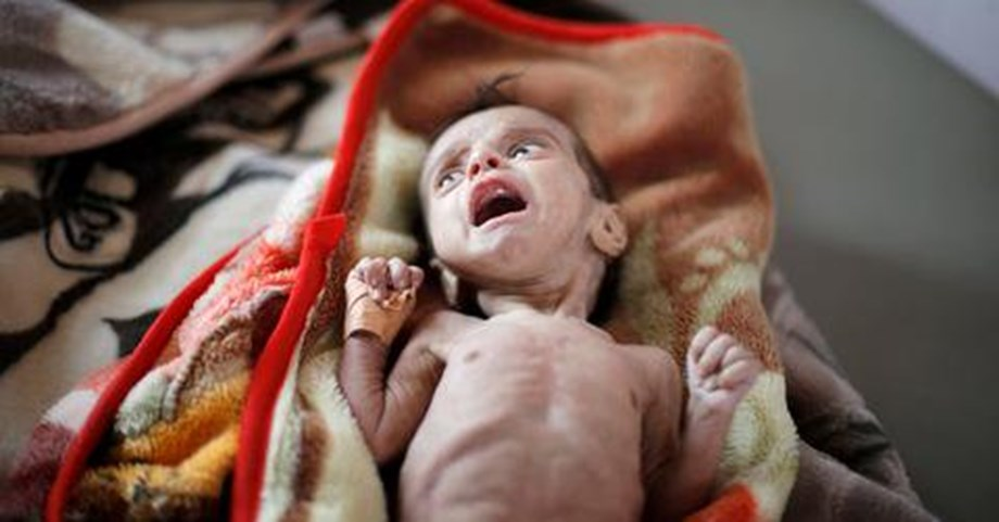Yemen suffers severe food shortage, 14 million risk of starvation