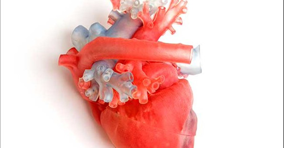 Researchers explore link between stem cells and heart attacks