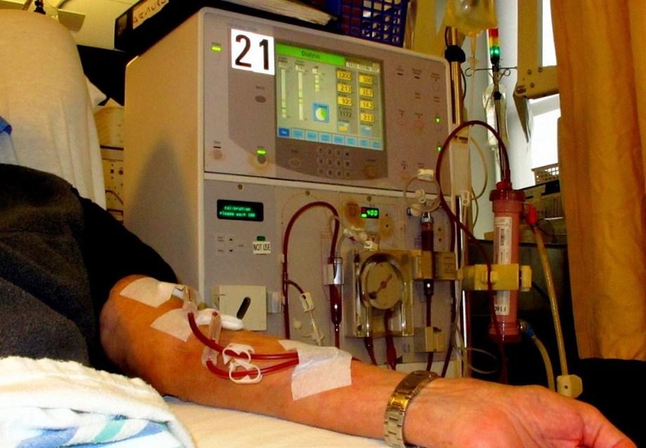 Dialyse rénale dans la dernière étape liée au retard du diagnostic: étude   – abdo