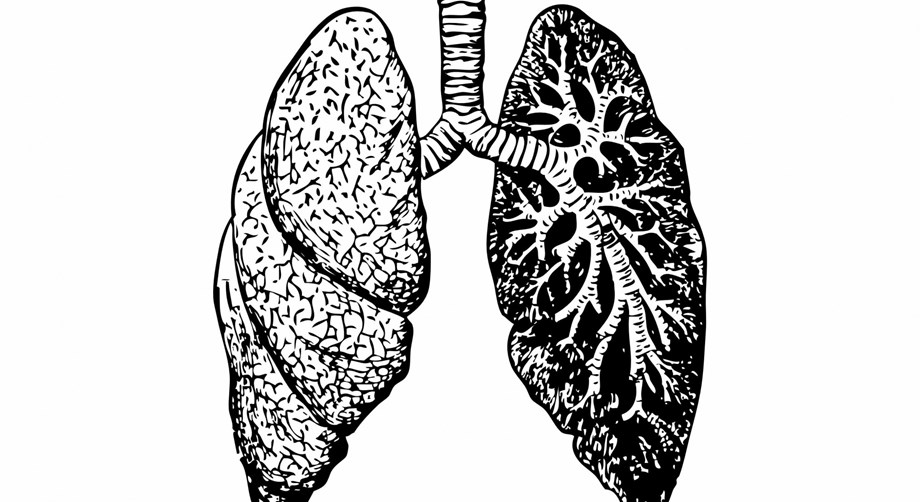 Lung cancer patients get new hope, inhalable chemotherapy could help in treatment